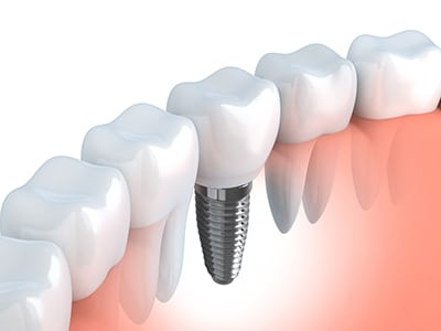 illustration of dental implant in a bite next to natural teeth