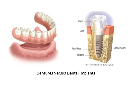 illustration of dentures next to a dental implant