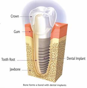 Diagram showing a dental implant.