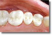 Photo showing white fillings