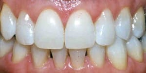 Photo after teeth whitening