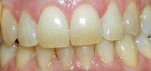 Photo showing yellow, stained teeth