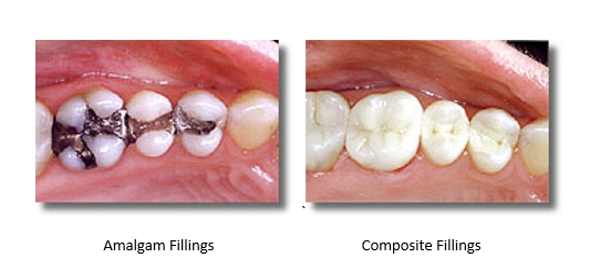 Left: teeth with amalgam fillings Right: teeth with composite fillings