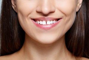 facial shot of woman smiling with gap between her teeth