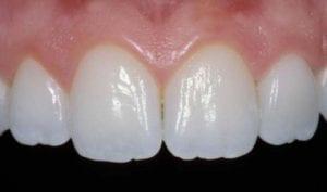 A close up image of teeth